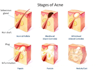 Stages of Pimples